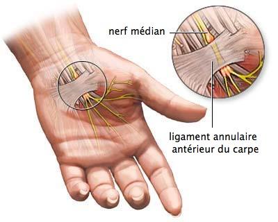 Illustration de la compression du nerf médian.