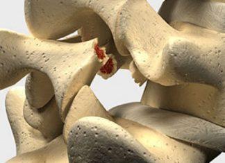 Spondylolisthésis