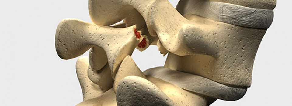 spondylolithesis symptoms Spondylolisthesis may not cause any symptoms for years (if ever) after the  slippage has occurred if you do have symptoms, they may include.