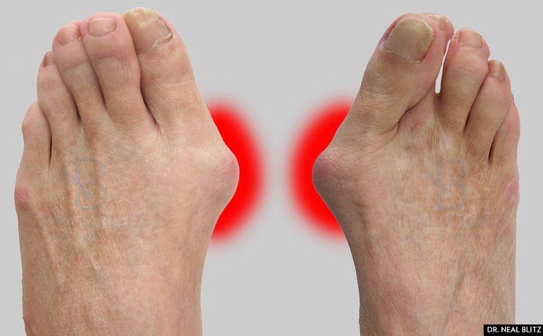 soins oignon pieds