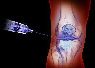 injection genou