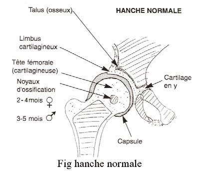 la luxation congénitale de la hanche