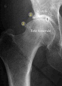 Radiographie d'une hanche arthrosique. 1. Pincement articulaire 2. Ostéophytes