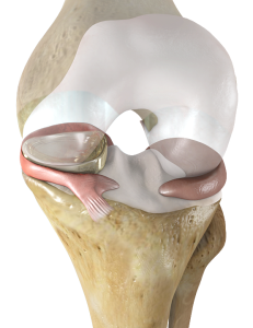 NUsurface® Meniscus Implant