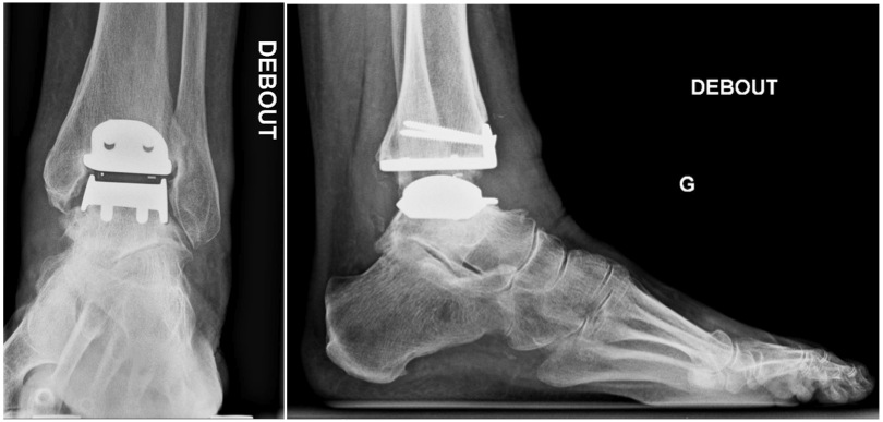 Radiographie post-opératoire de la cheville. Prothèse en place.