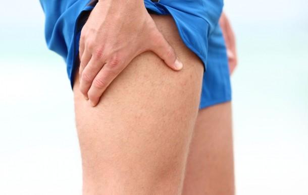 douleur et inflammation de la hanche