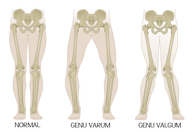 Les différentes déformations axiales des membres inférieurs.