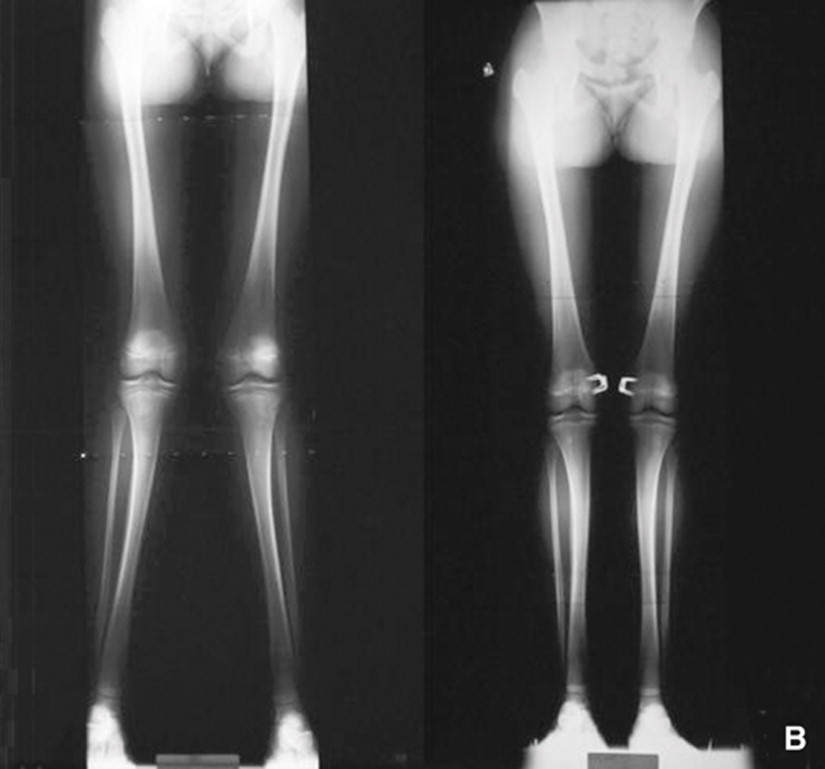 A. Genu valgum bilatéral symétrique chez une enfant âgée de 12 ans avec distance intermalléolaire de 12 cm. B. Agrafage physaire médial fémoral distal bilatéral qui a permis de corriger le genu valgum en 2 ans avec une distance intermalléolaire de 4 cm.