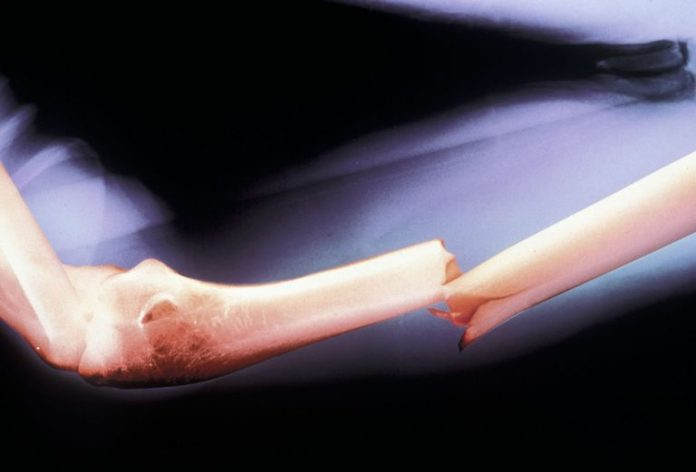 Fracture osseuse