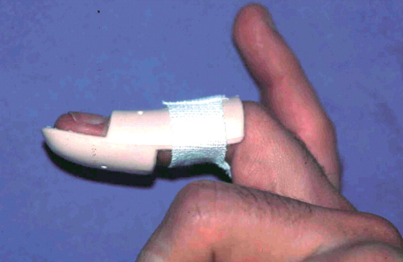 Mallet finger traité par attelle de Stack