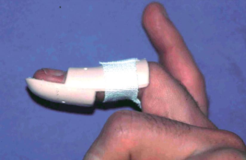 Mallet finger traité par attelle de Stack