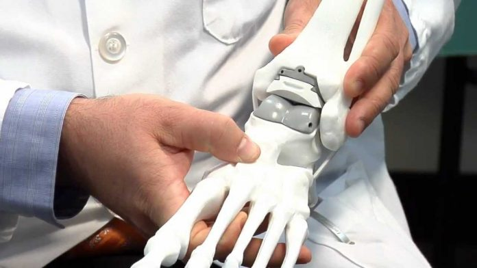 prothèse cheville