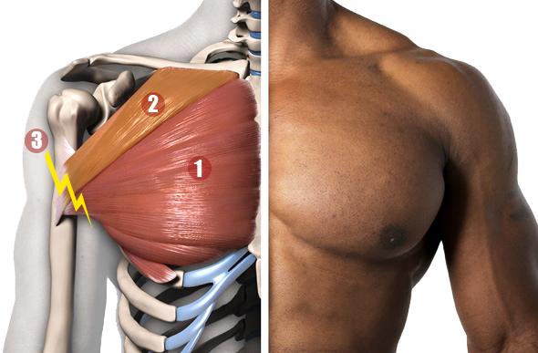 Muscles grand pectoral. 1. 2. 3. Site de la rupture musculaire.