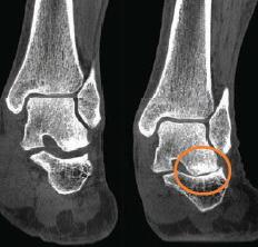 L'image à gauche d'une cheville en décharge ne révèle pas l'arthrose. L'image à droite en charge révèle le pincement articulaire.