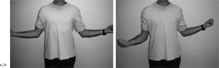 Testing de la rotation latérale. La rotation latérale se teste de façon comparative (a). Limitation de la rotation latérale droite telle qu'on l'observe dans une capsulite (b).