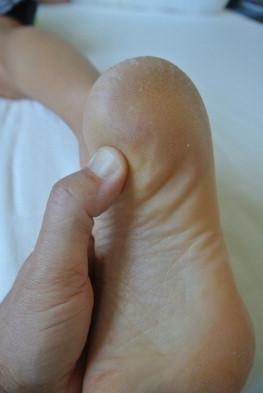 (Fig. 1) Point douloureux à la palpation en avant de l'insertion médiale sur la tubérosité inférieure du calcanéum.