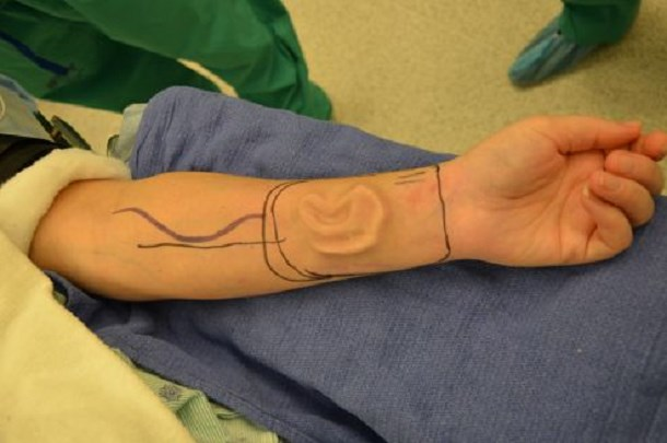 greffe-oreille-bras-belgique-1