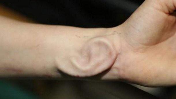 greffe-oreille-bras-belgique-3