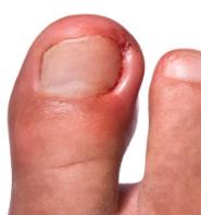ongle incarn 233 causes signes et traitement sant 233 orthop 233 dique