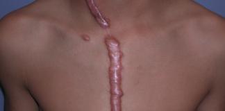 cicatrice hypertrophique