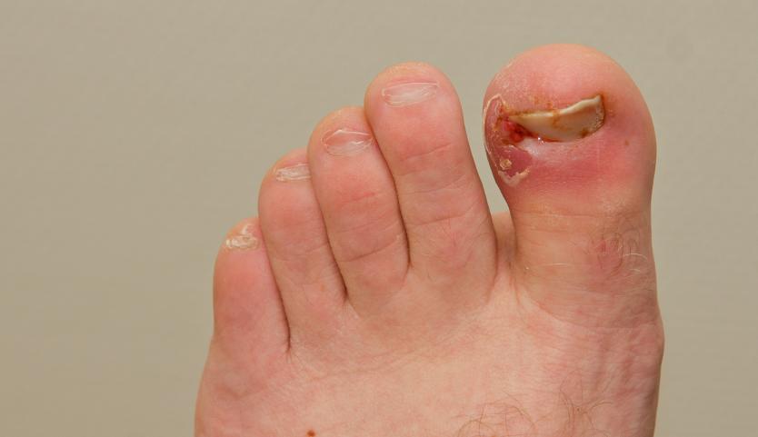 Les ongles mous le traitement médicamentaire