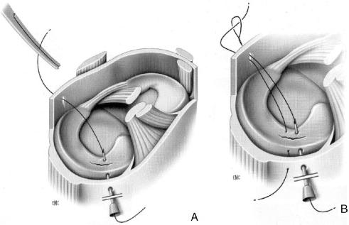 Suture de dehors en dedans avec aiguille. Les deux fils sont récupérés par la voie antérieure. Une boucle est confectionnée permettant de tracter le deuxième fil.