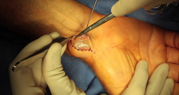Kyste synovial du poignet à la face palmaire, opéré à ciel ouvert.