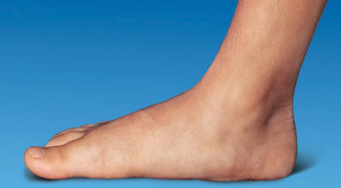 Genou : Rupture du ligament croisé postérieur | Santé Orthopédique