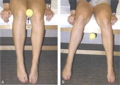Le patient atteint d'une tendinite des adducteurs a un test de Waldman de resserrement des genoux positif. A. Le patient tient légèrement une balle de tennis entre les genoux. B. Le patient atteint d'une tendinite des adducteurs effectue une abduction réflexe des genoux, ce qui provoque la chute de la balle.