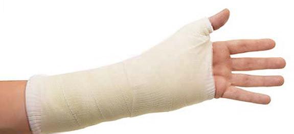 Plâtre du poignet