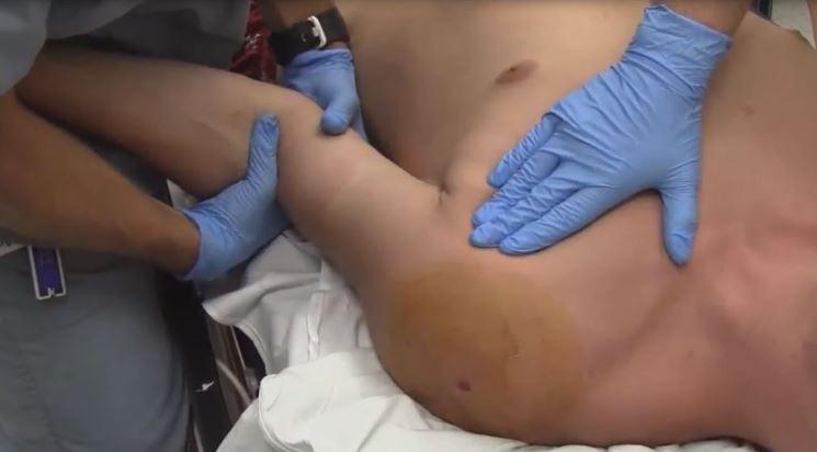 réduction de la luxation de l'épaule