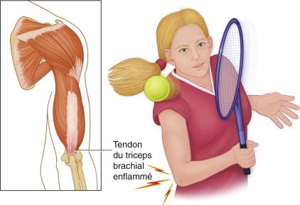 douleurs au triceps