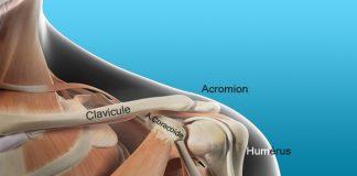 Fracture de la clavicule