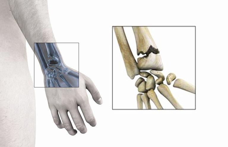 Les fractures du poignet chez l'adulte : traitement et complications