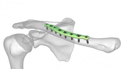 Plaque visée de la fracture de la clavicule