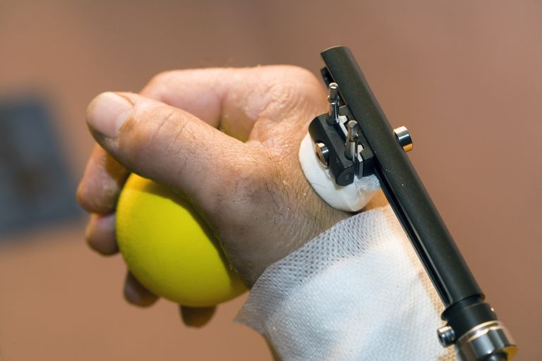 fixateur externe poignet