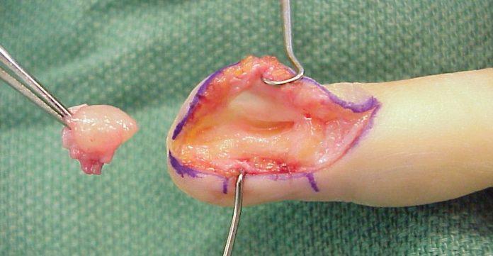 Tumeur glomique