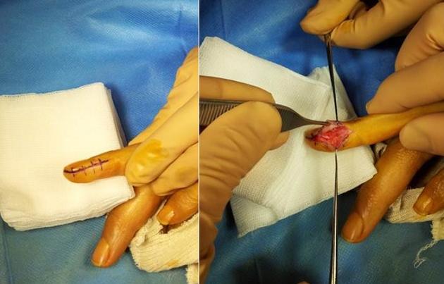 Ablation de la tumeur glomique.