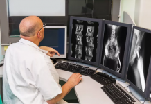 Radiologie tumeurs osseuses