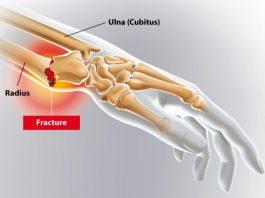 Fracture Pouteau-Colles