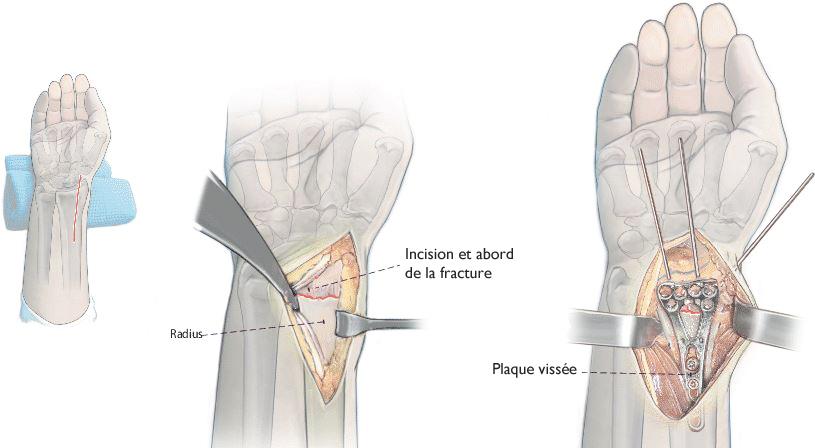 grosses soldes bons plans 2017 100% de haute qualité Fracture du poignet Pouteau-Colles - Quels traitements ?