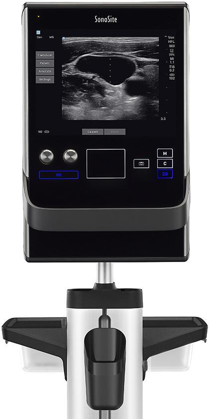 SonoSite-ultrasound