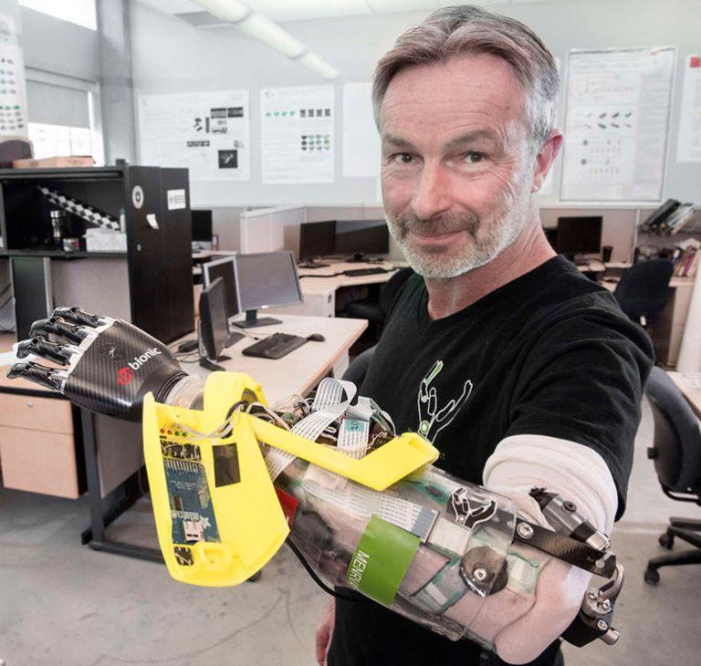 La main bionique dernière génération de RSLSteeper