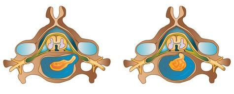 Saillie du disque intervertébral : sur le dessin de gauche, la hernie comprime la racine lorsqu'elle sort de la vertèbre dans ce qu'on appelle le foramen. Dans la figure de droite, la hernie comprime la racine en arrière. C'est le cas le plus fréquent.