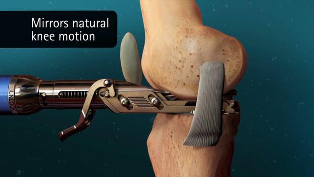 Prothèse partielle du genou ou unicompartimentale PUC
