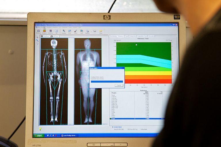 Fracture de la hanche : des fractures typiques de l'ostéoporose