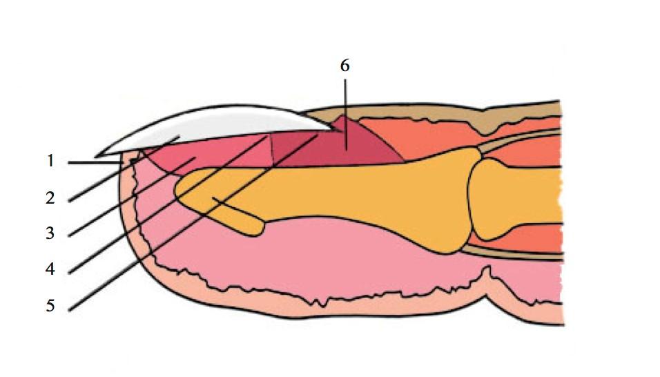 1. Hyponichium, prolongement du lit de l'ongle 2. Ongle 3. Lit de l'ongle 4. Projection de la lunule marquant la limite entre la matrice et la zone stérile du lit de l'ongle 5. Eponychium, cuticule de peau à la base de l'ongle 6. Matrice de l'ongle