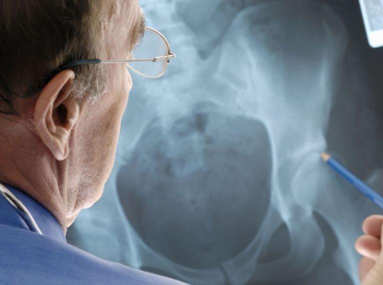 Coxarthrose ou arthrose de la hanche  : les points essentiels à connaitre