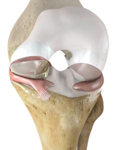 NUsurface® Meniscus Implant