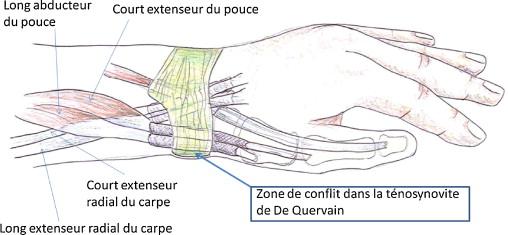 Schéma de la face radiale du poignet et conflit au sein du premier compartiment dorsal.